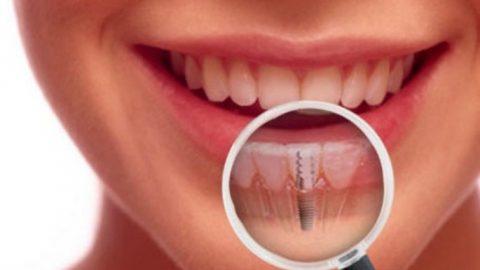 Ce trebuie sa stiti in legatura cu implanturile dentare?